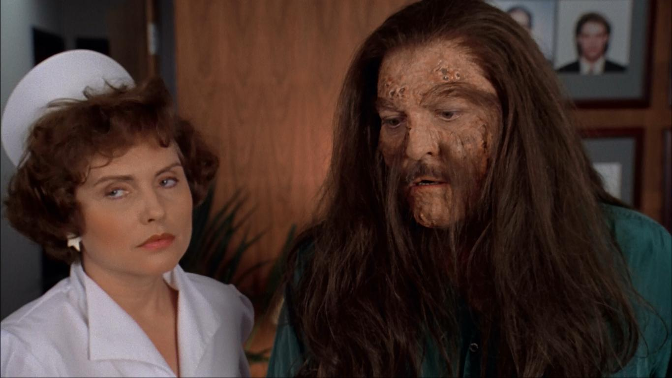 Stacy Keach finds that his hair will not stop growing. Accompanied by his nurse, played by pop singer Deborah Harry in Body Bags (1993)