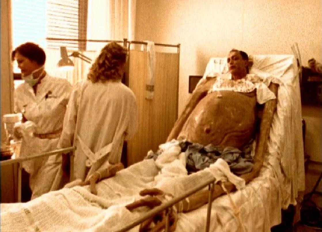 Udo Kier as the giant Devil baby in The Kingdom II (1997)