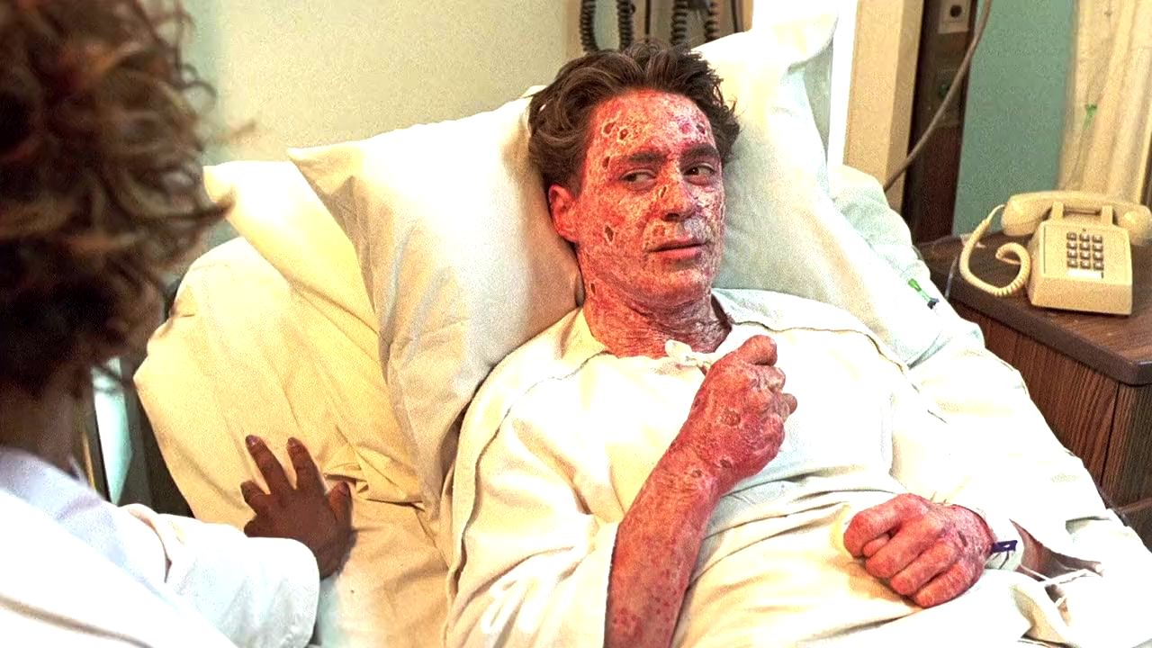 Robert Downey Jr hospitalied with psoriasis in The Singing Detective (2003)